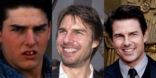 Секрет голливудской улыбки 001