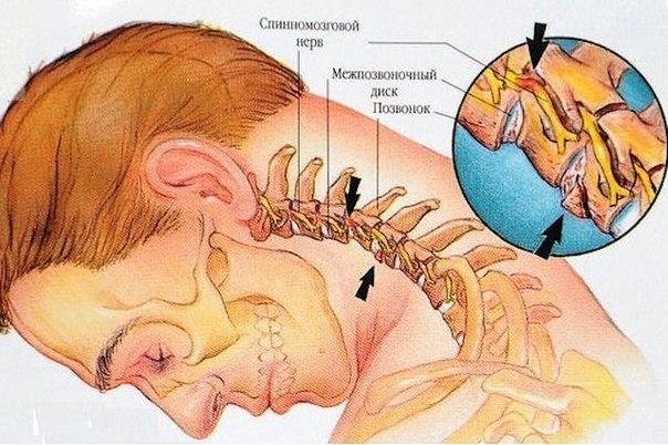 остеохрндроз
