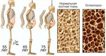 Газировка разрушает костную ткань