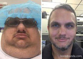 25 людей, которые потеряли так много лишнего веса, что удивили всех (совсем другие люди)
